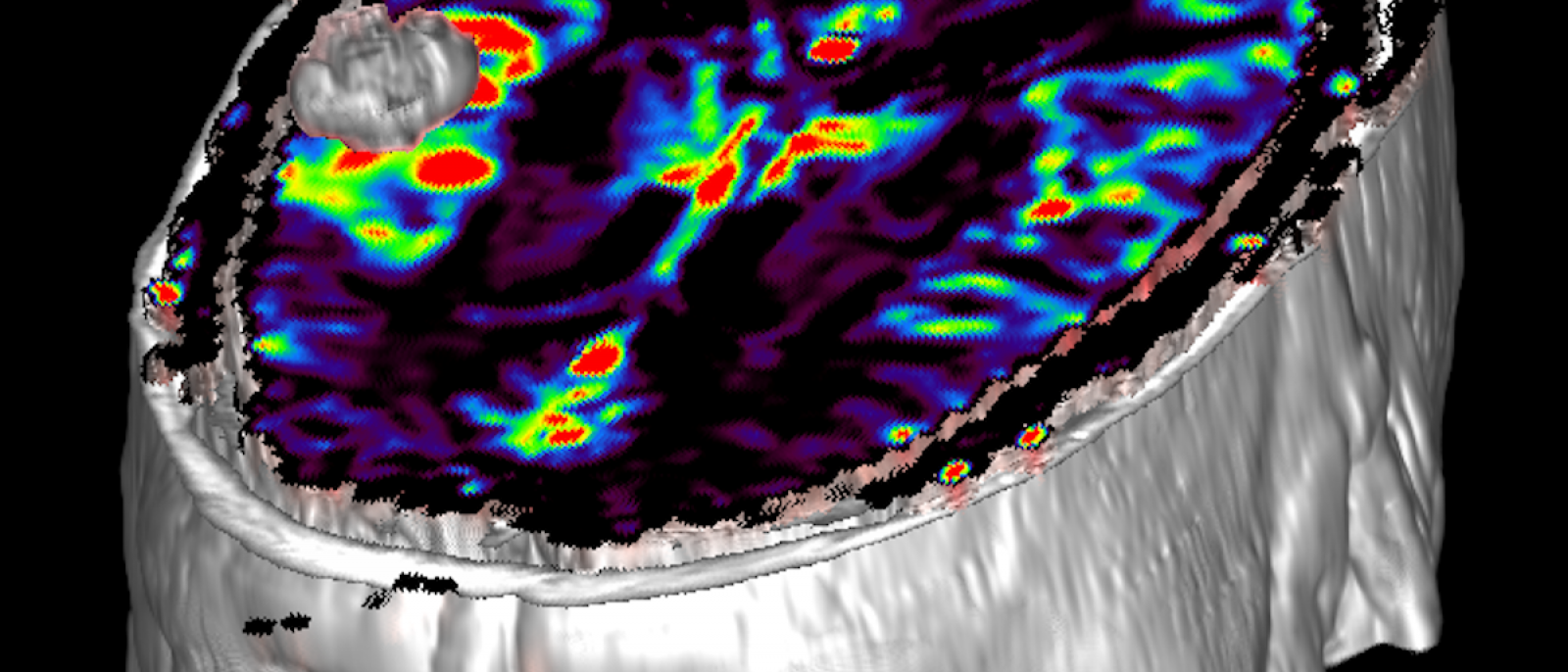 3D image of neuro regional cerebral blood volume map